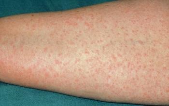 Dị ứng penicillin là gì: dấu hiệu, nguyên nhân và cách điều trị