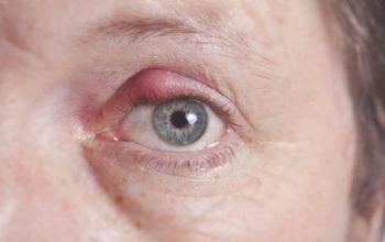 Bệnh lẹo mắt là gì? Dấu hiệu nhận biết và cách phòng tránh