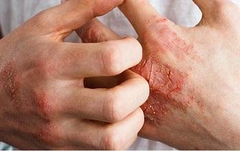 Viêm khớp vảy nến là gì? Những điều bạn cần biết về bệnh viêm khớp vảy nến
