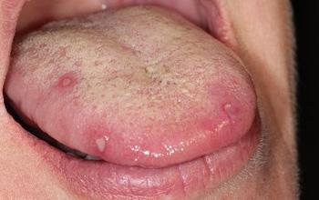Những điều cần biết về loét lưỡi apthae