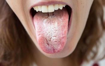 Bệnh nấm lưỡi là gì? Dấu hiệu nhận biết và cách điều trị bệnh nấm lưỡi