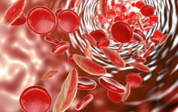 Bệnh tan máu bẩm sinh là gì? Có thể chữa khỏi được không?