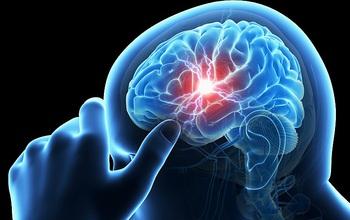 Thiếu máu não là gì? Bệnh có thể dẫn đến tử vong nếu không điều trị sớm