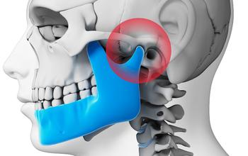 Loạn năng thái dương hàm là gì? Nguyên nhân, triệu chứng và cách điều trị