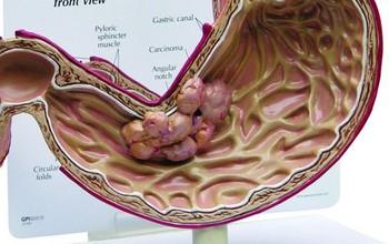 Các phương pháp điều trị ung thư dạ dày