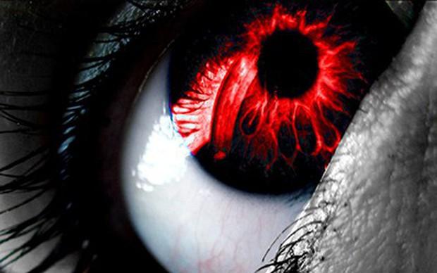 Bị đau mắt đỏ phải làm gì?