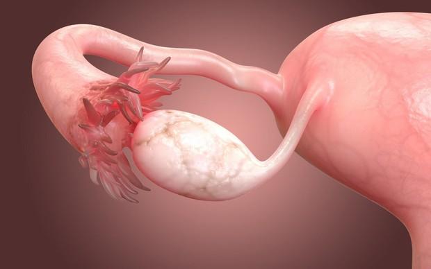 Xoắn buồng trứng: Nguyên nhân, dấu hiệu và phương pháp điều trị
