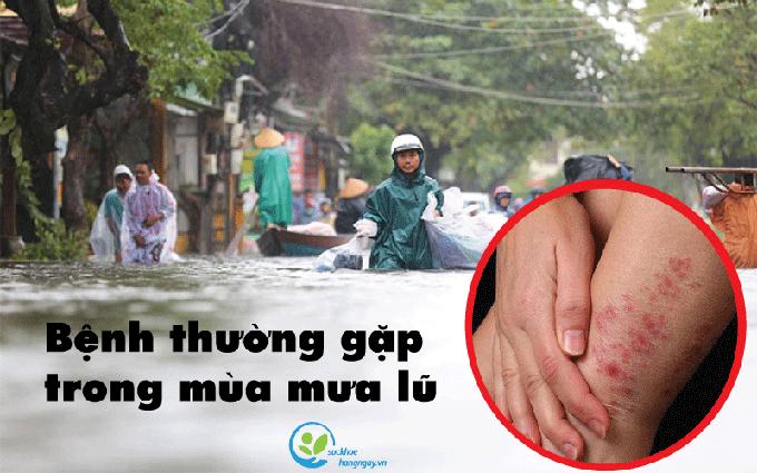 PGS.TS Huỳnh Wynn Trần: Hội chứng bàn chân ngập nước và nước ăn chân là hai bệnh trong mùa lũ phổ biến