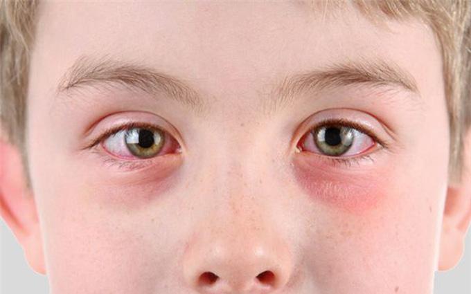 Tổng hợp nguyên nhân gây các dạng đau mắt đỏ và cách nhận biết