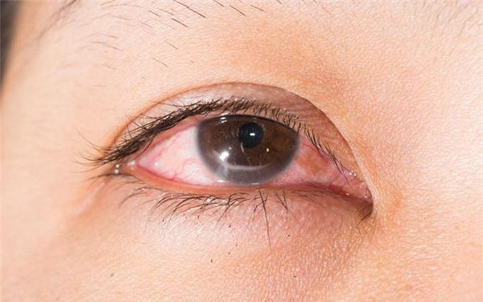 Những biện pháp phòng tránh bệnh đau mắt đỏ khi có dịch  người bệnh cần biết