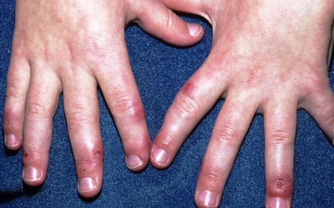 Trời lạnh dễ bị bệnh cước tay, chân: Làm thế nào để phòng bệnh?