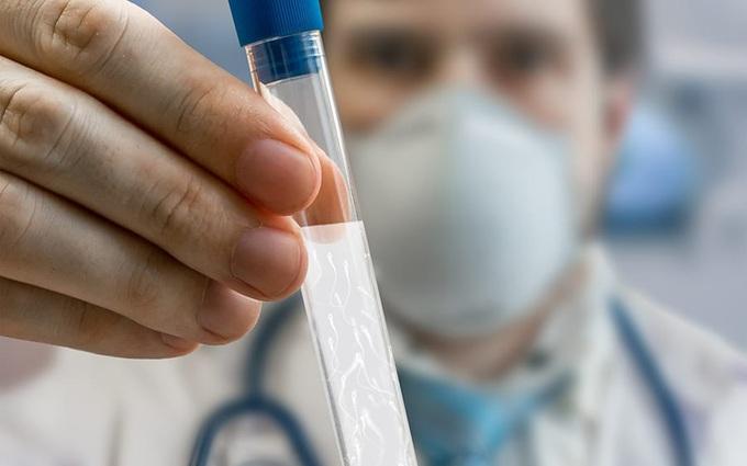 Tinh trùng và những điều cần biết