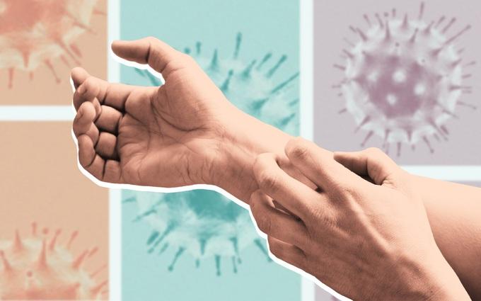8 dạng phát ban trên da có thể là dấu hiệu COVID-19