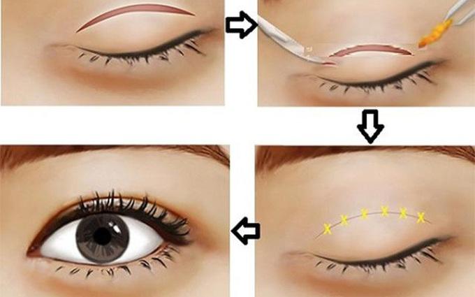 Cắt mí mắt: Hậu quả khôn lường và biện pháp khắc phục mí mắt bị lỗi, hỏng