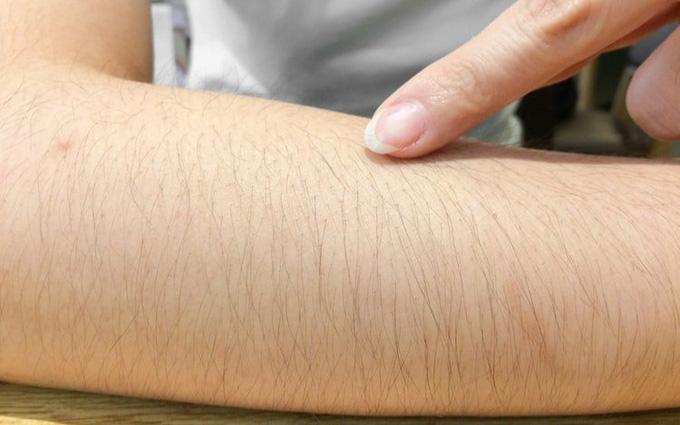 Tình trạng rậm lông ở phụ nữ: Nguyên nhân và biện pháp khắc phục