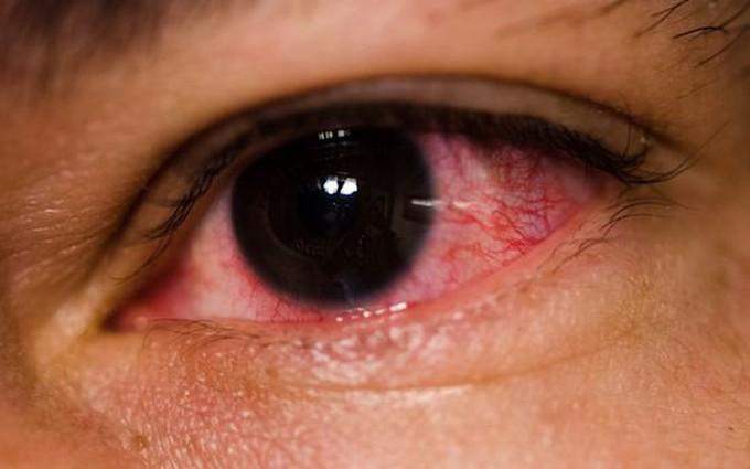 Làm gì để phòng trách dịch bệnh đau mắt đỏ?