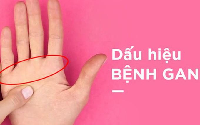 Hướng dẫn cách bắt bệnh gan bằng đầu ngón tay