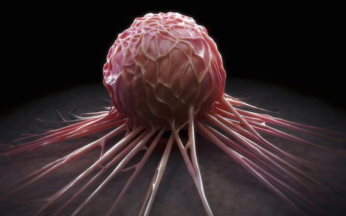 Nhận biết các dấu hiệu ung thư ở nam giới