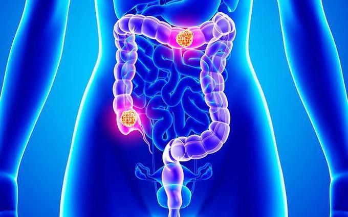 Đau dạ dày kèm đi ngoài bất thường là bệnh gì?