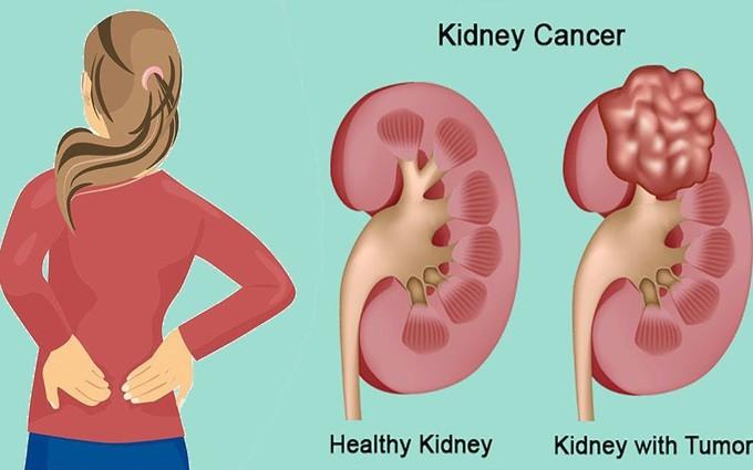Đau tức vùng hông và những dấu hiệu cảnh báo ung thư thận