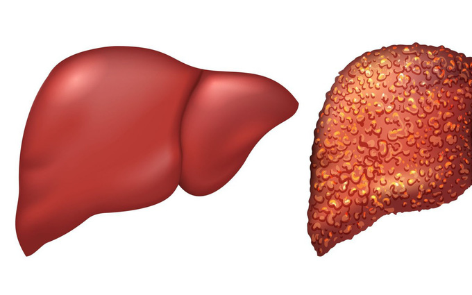 Những thực phẩm bệnh nhân gan nhiễm mỡ cần tránh