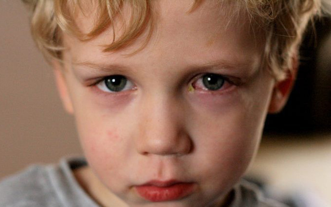 Liệu mắt đỏ là dấu hiệu của bệnh gì ngoài viêm giác mạc?