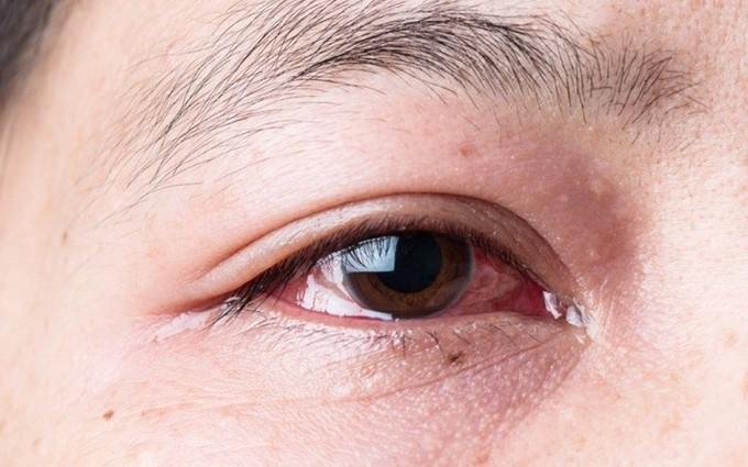 Chia sẻ phương pháp phòng và điều trị viêm kết mạc