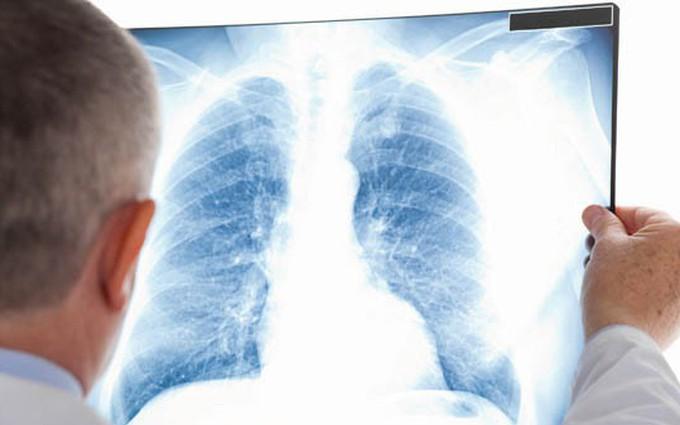 Viêm nấm phổi: Nguyên nhân và cách điều trị