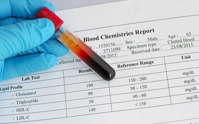 Nguyên nhân mỡ máu cao: Stress chính là thủ phạm?