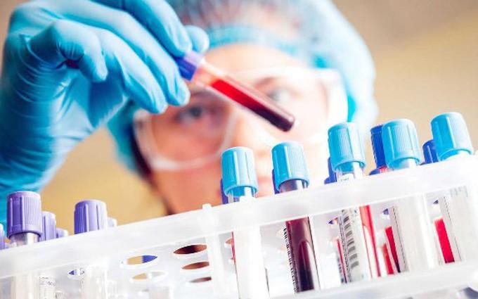 Thử máu thường xuyên giúp tầm soát ung thư buồng trứng sớm