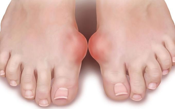 Biến chứng của bệnh gout- nỗi ám ảnh của nhiều người