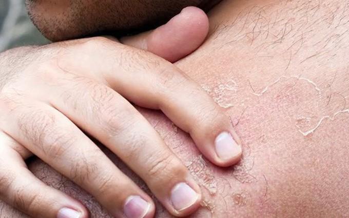 Tìm hiểu về các loại ung thư da thường gặp