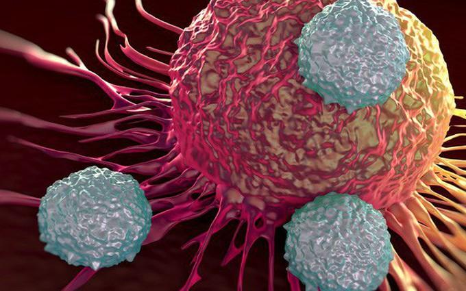 Chiến thắng căn bệnh ung thư trực tràng di căn phổi sau 9 tháng điều trị