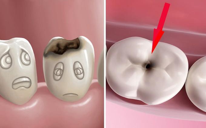 Viêm tuỷ răng là gì và các giai đoạn của bệnh?