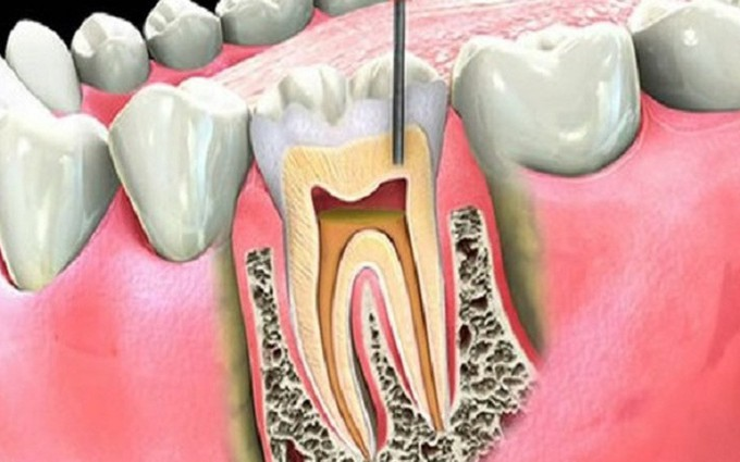 Phương pháp điều trị viêm tuỷ răng tại nhà