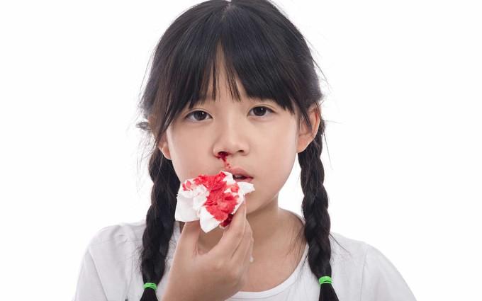 Máu khó đông ở trẻ em: Không điều trị kịp thời rất dễ tử vong