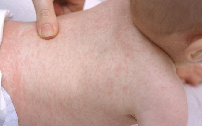 Nhận biết bệnh tay chân miệng với các bệnh có triệu chứng tương tự