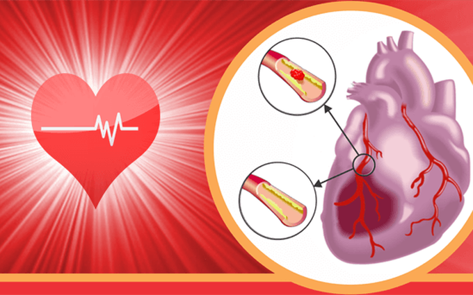 Nhồi máu cơ tim là gì? Chớ coi thường 10 dấu hiệu sau đây của nhồi máu cơ tim