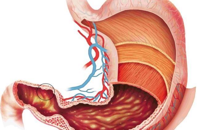 Các nguyên nhân trào ngược dạ dày phổ biến