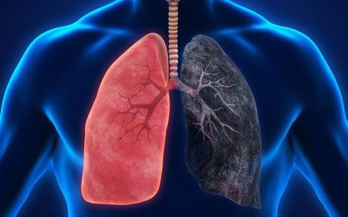 Nguyên nhân và triệu chứng bệnh phổi tắc nghẽn mãn tính