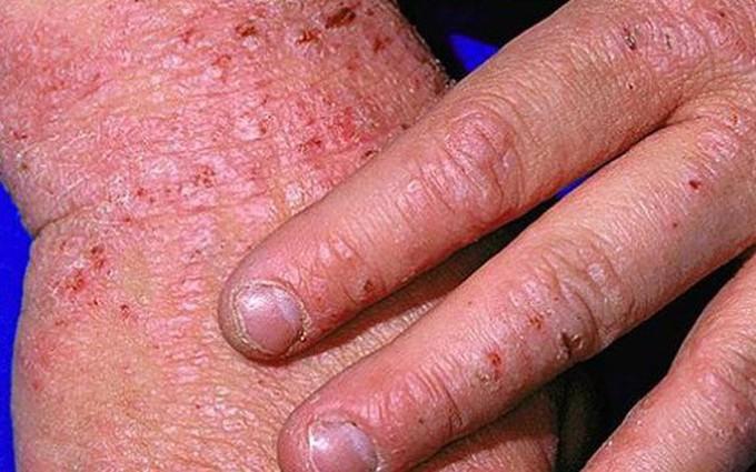 6 Điều cần biết về bệnh eczema