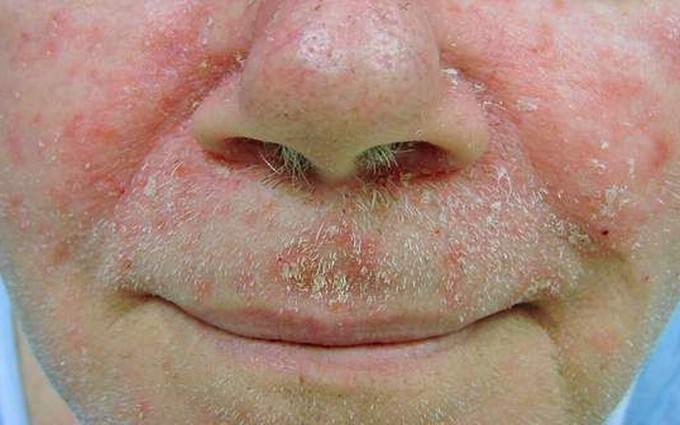 6 nguyên nhân gây viêm da tiết bã nhờn nhiều người bỏ qua