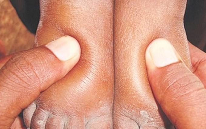 Viêm cầu thận thực chất là bệnh gì?