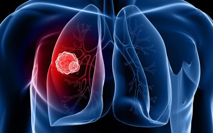 Những điều cần biết về u khí quản