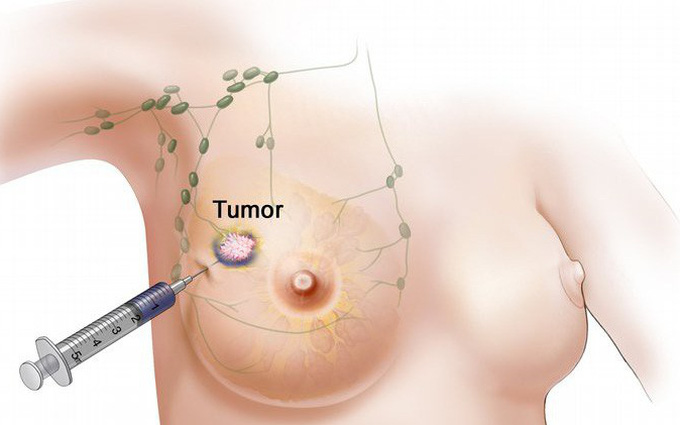 U mỡ ở ngực - căn bệnh ít người biết