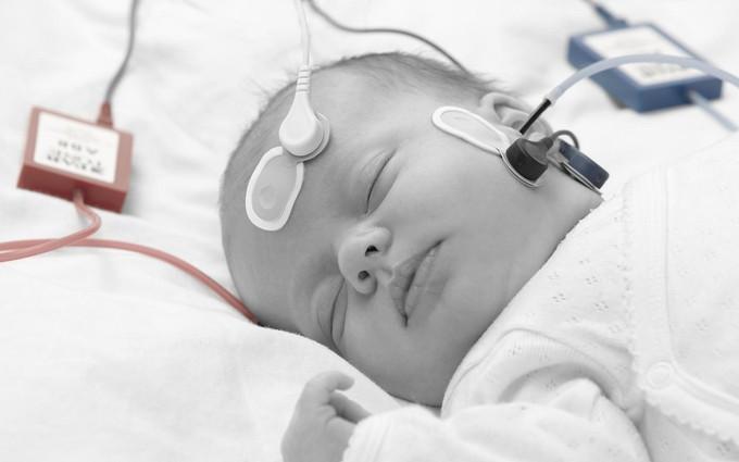 Trẻ chậm nói có thể đối mặt với nguy cơ bị bệnh câm điếc bẩm sinh