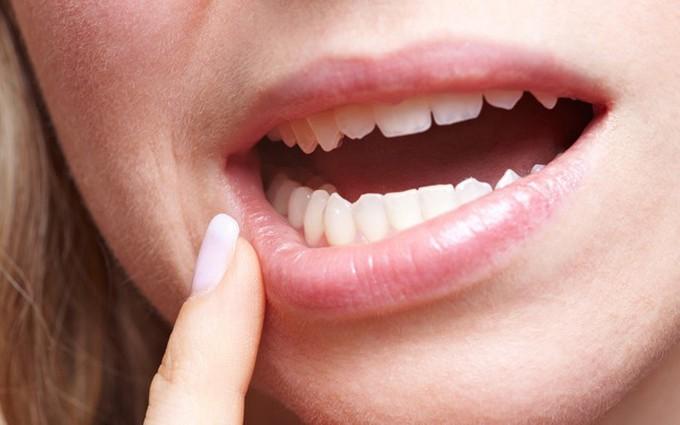 Mắc bệnh ung thư miệng do thói quen sống không lành mạnh