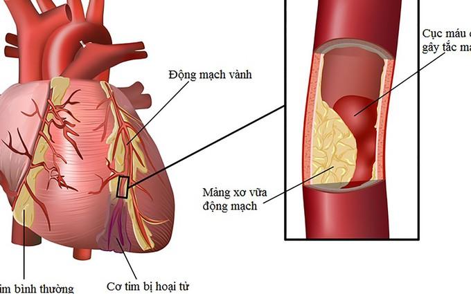 Những nguyên nhân gây bệnh van tim thường gặp