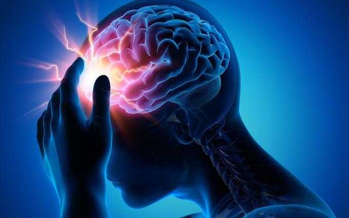 Phình mạch máu não và những biến chứng nguy hiểm