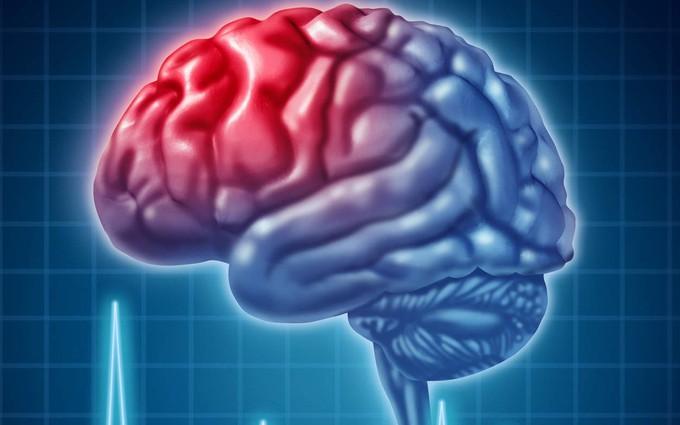 Thiếu máu não là gì?